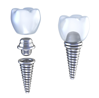 Dental Implants at Pacific Modern Dentistry