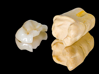 Model of ceramic tooth restoration made by Seattle dentist at Pacific Modern Dentistry.