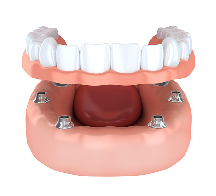 Implant fixed dentures model used by Seattle dentist at Pacific Modern Dentistry.