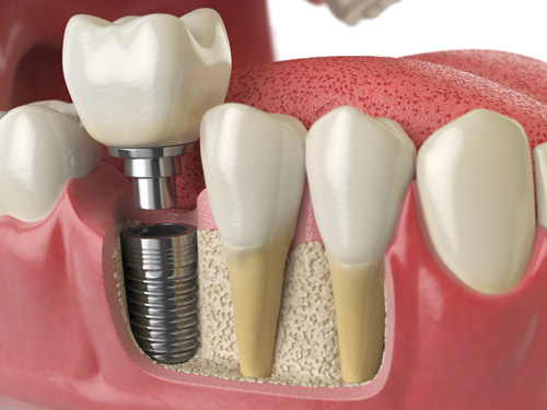 Dental implant model with tooth socket graft by Seattle dentist at Pacific Modern Dentistry.