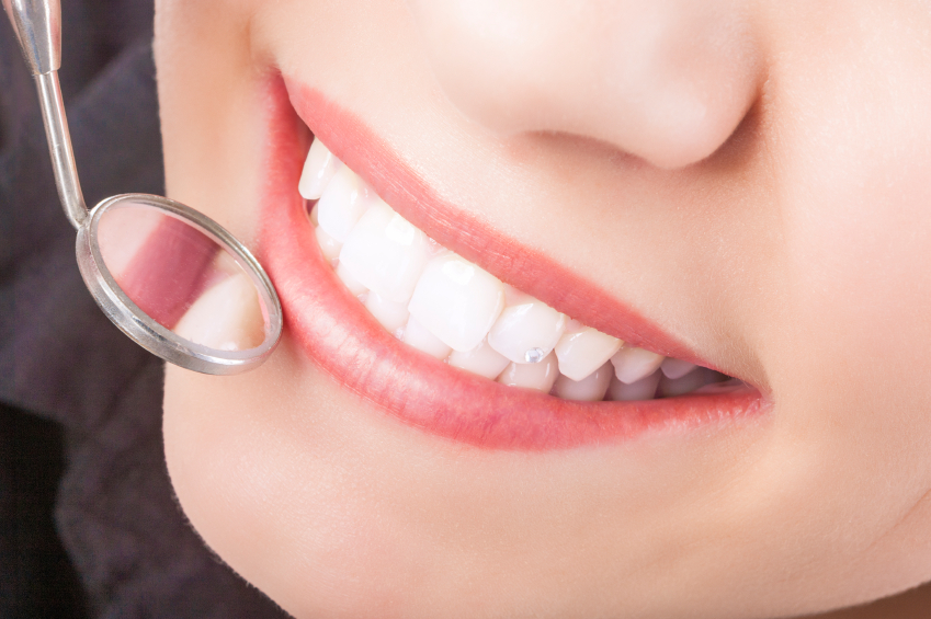 Do Your Teeth Stay Healthier When You Have Dental Bonding?